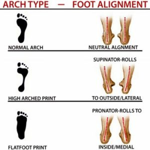 Arch types